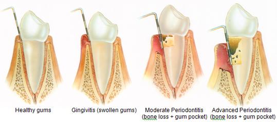 Sunnyvale Dentist - Periodontal Disease - Gum Disease